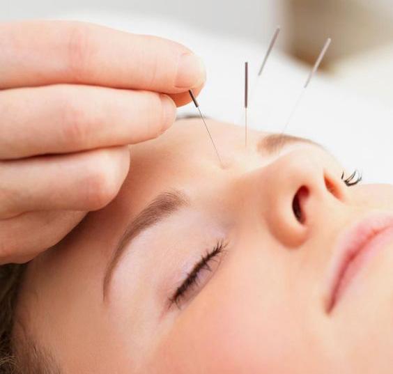 rejuvenece tu rostro con kobido y acupuntura en las rozas